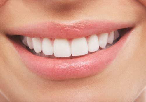 dentista en Valladolid